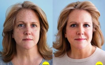 How to Fade Freckles with Products