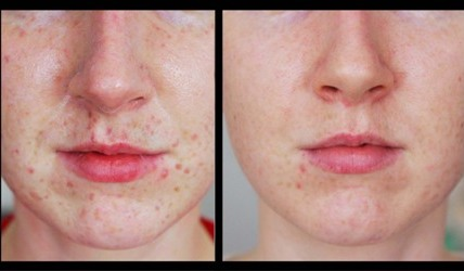 Laser Freckle Removal Before And After Picture Beautyzion