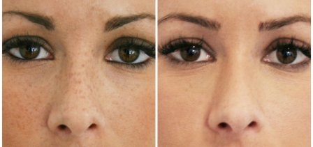 Laser Freckle Removal Before and After picture
