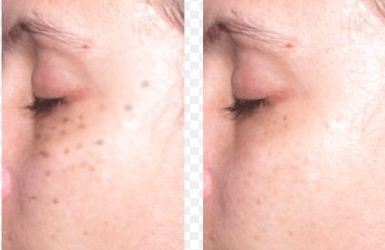Laser Freckle Removal Cost Before And After Best