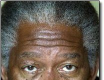 Morgan Freeman - dark skinned man with freckles