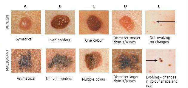 ABCDE of Malignant Melanoma mole