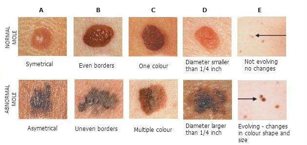 ABCDE of normal and abnormal mole