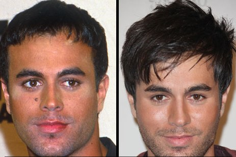 Enrique Iglesias Mole Before and After Removal