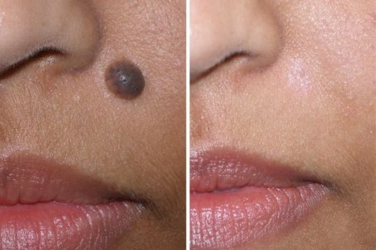 Before and after mole removal pictures