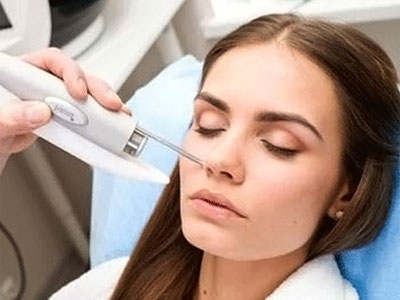 Laser mole removal fom the face