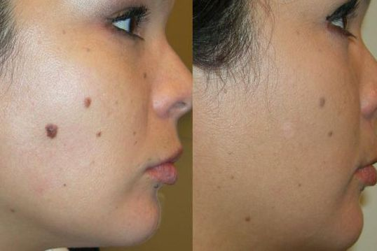 Mole removal with honey before and after