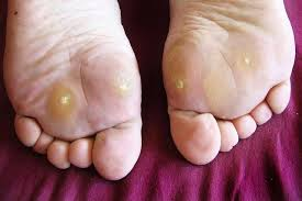 Corns on sole of foot