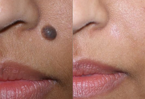 Mole removal - Before and after
