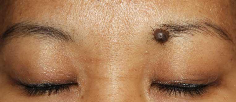 Moles on eyebrow