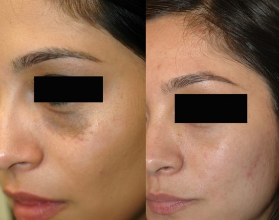 Picture Before And After Birthmarks Cream Application