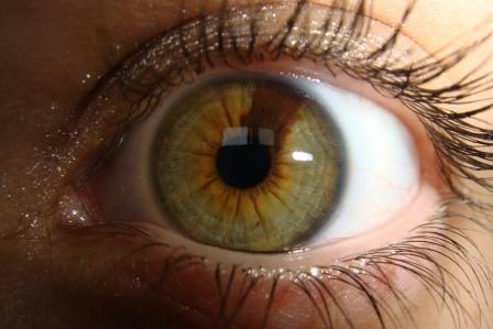 Sectoral heterochromia - Green eye with a brown section