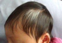 White birth marks on hair