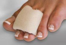 Corn bandages