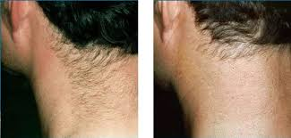 Before and after laser hair removal from back of neck