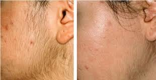 Before and after laser hair removal from face
