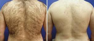 Before and after laser hair removal from the back