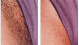 Bikini hair removal before after