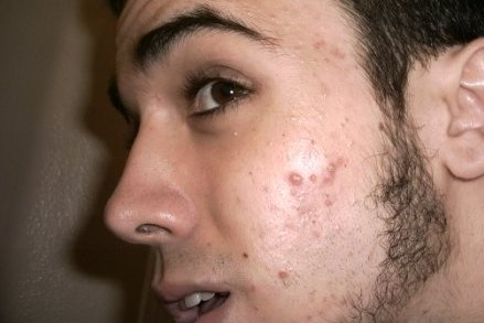 Face with active acne