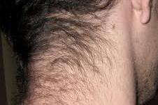 Hair on the back of the neck