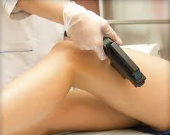 Laser hair removal from leg
