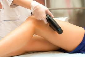 Laser hair removal from legs