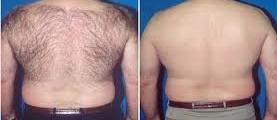 Before and after laser hair removal from back