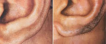 Before and after laser hair removal from ear