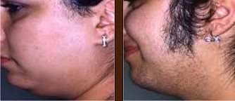Before and after laser sideburn removal
