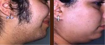 Laser hair removal from face before and after