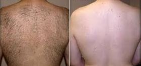 Laser hair removal from backbefore and after