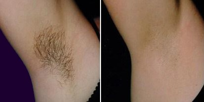 Laser hair removal under arm before and after