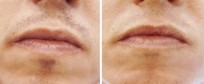 Laser hair removal upper lip before after